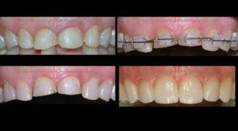 Foto 1 del artículo del Doctor Fernando de la Iglesia sobre Ortodoncia y Carillas de Cerámica