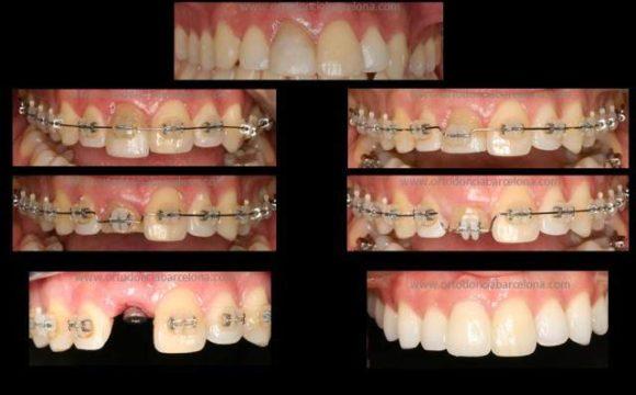 Foto 1 del artículo del Doctor Fernando de la Iglesia sobre Ortodoncia e Implantes y Estética Dental