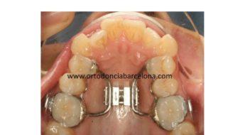 Foto 1 del artículo del Doctor Fernando de la Iglesia sobre SARPE (Surgical Assisted Rapid Maxillary Expansion)