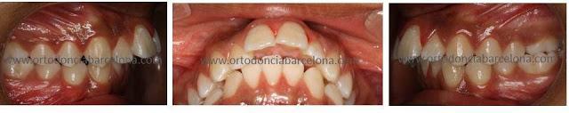 Foto 1 del artículo del Doctor Fernando de la Iglesia sobre Ortodoncia y Estética Dental mediante extracciones dentales