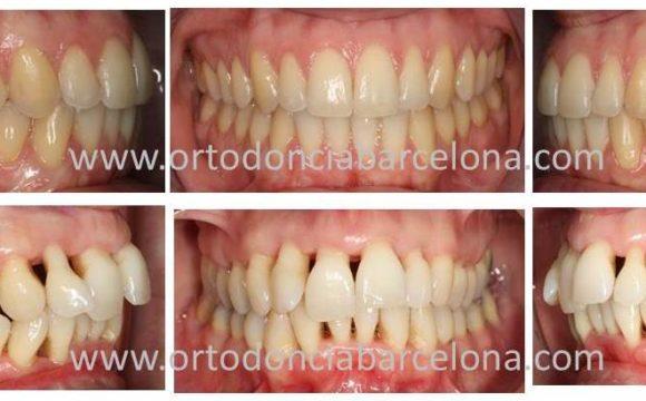Foto 1 del artículo del Doctor Fernando de la Iglesia sobre Ortodoncia en pacientes con problemas de encía o Enfermedad Periodontal