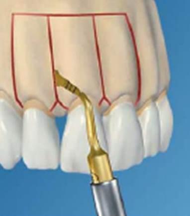 Foto 1 del artículo del Doctor Fernando de la Iglesia sobre Corticotomías y Ortodoncia