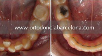 Foto 1 del artículo del Doctor Fernando de la Iglesia sobre Retención dental en ortodoncia