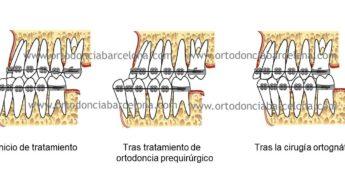 Foto 1 del artículo del Doctor Fernando de la Iglesia sobre Ortodoncia y Surgery First en Barcelona