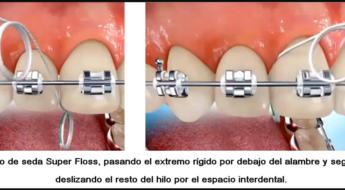 Foto 1 del artículo del Doctor Fernando de la Iglesia sobre Higiene y cuidados orales para pacientes con ortodoncia