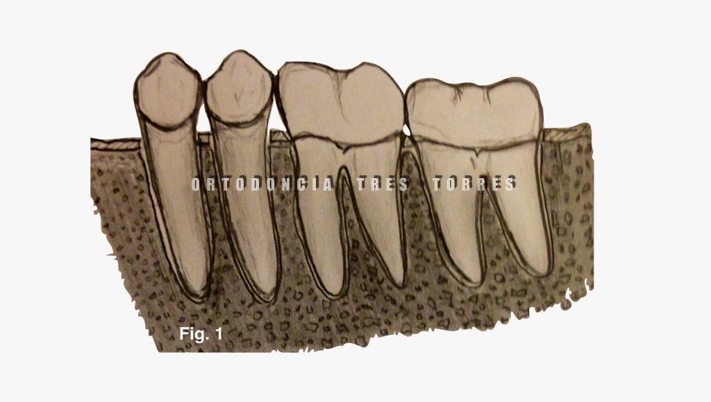 Foto 1 del artículo del Doctor Oriol Quevedo sobre Ortodoncia Pre-Protésica