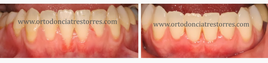 injertos-encia-ortodoncia