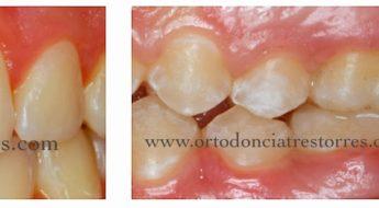 Foto 1 del artículo del Doctor Fernando de la Iglesia sobre Manchas blancas dentales. Causas y prevención. ¿La ortodoncia produce manchas blancas?