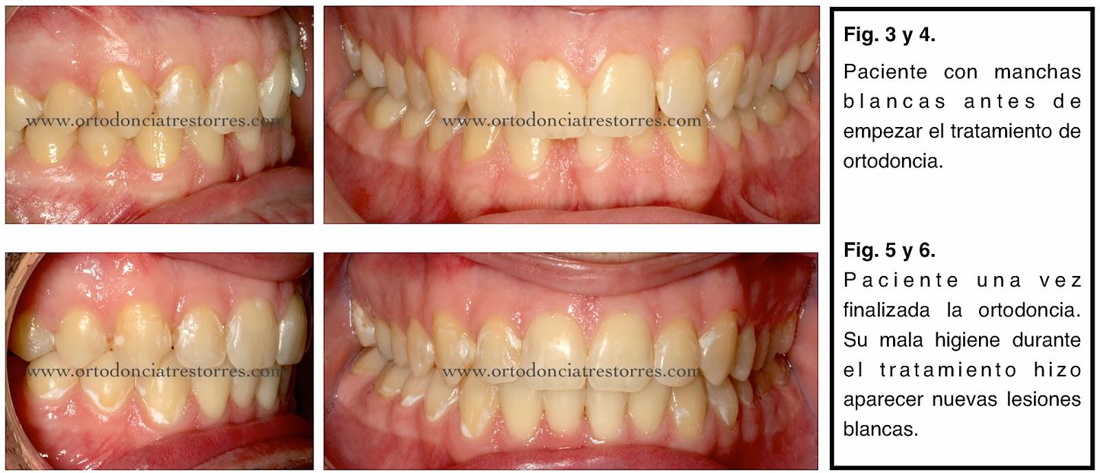 manchas-blancas-ortodoncia