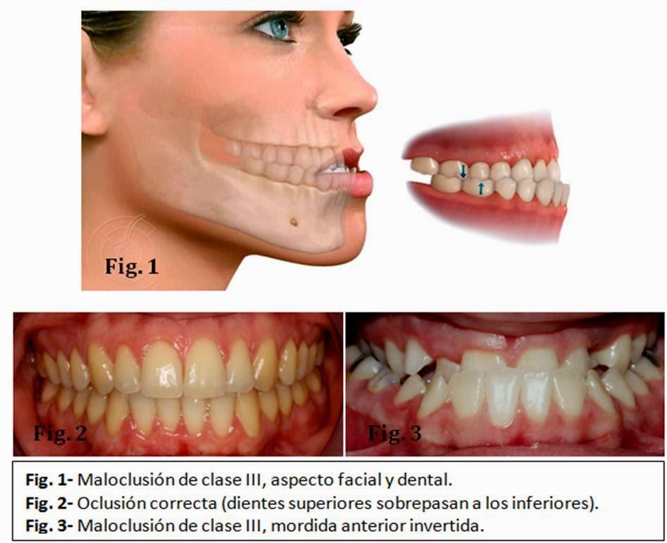 clase3-ortodoncia-quirurgica
