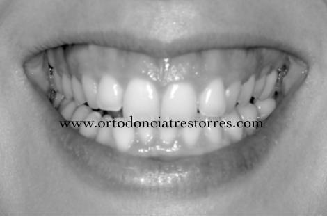 Foto 1 del artículo del Doctor Oriol Quevedo sobre ¿Qué es la SONRISA GINGIVAL? ¿Se puede tratar y corregir con ortodoncia?