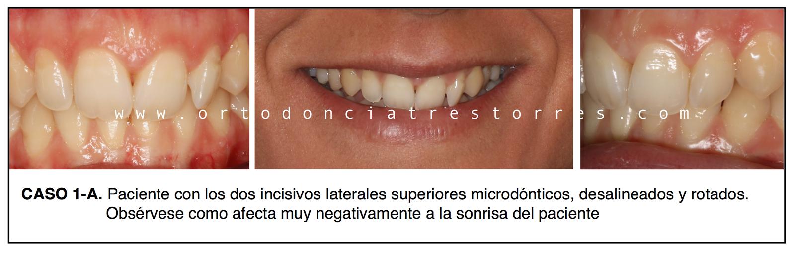 incisivos-laterales-conoides