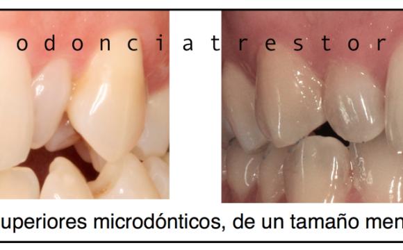 Foto 1 del artículo del Doctor Oriol Quevedo sobre Tratamiento de los incisivos laterales pequeños (Microdónticos y/o Conoides)