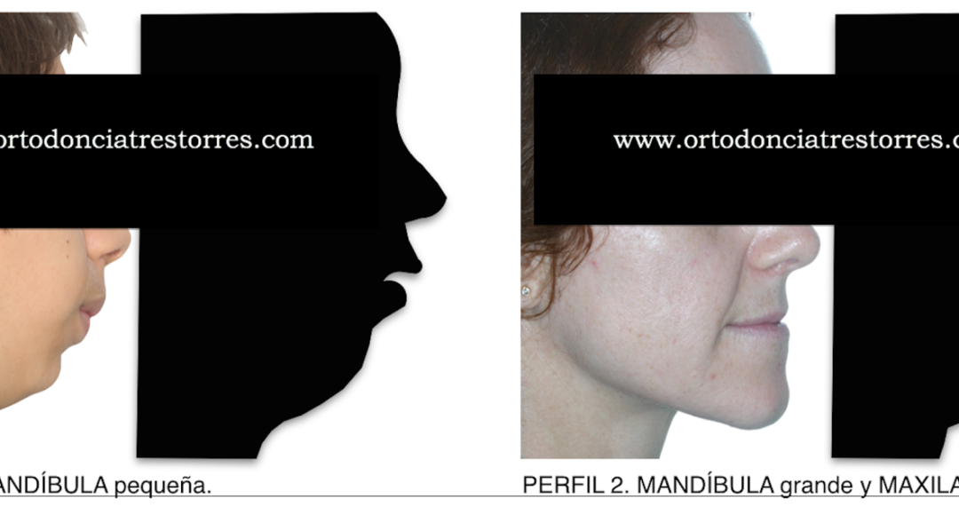 Foto 1 del artículo del Doctor Oriol Quevedo sobre ORTODONCIA QUIRÚRGICA & CIRUGÍA ORTOGNÁTICA. PARTE 1: AVANCE MANDIBULAR. (RETROGNATIA MANDIBULAR, HIPOPLASIA MANDIBULAR, CLASE II MANDIBULAR)