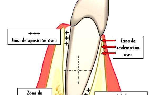 Foto 1 del artículo del Doctor Fernando de la Iglesia sobre ¿Duelen los dientes al empezar el tratamiento de ortodoncia? ¿Por qué? ¿Cómo se mueven los dientes?