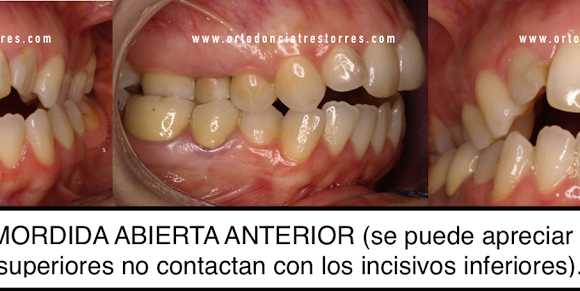 Foto 1 del artículo del Doctor Oriol Quevedo Pou sobre ¿Qué es una mordida abierta? ¿Cómo y por qué se produce? ¿Cómo se trata?