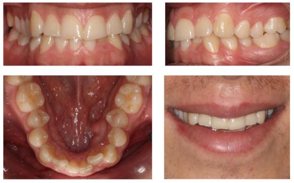 Foto 1 del artículo del Doctor Fernando de la Iglesia sobre Tratamiento de Ortodoncia Invisible mediante el sistema Invisalign en Barcelona