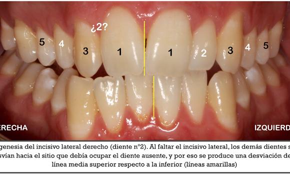 Foto 1 del artículo del Doctor Fernando de la Iglesia sobre Curso Agenesia dental
