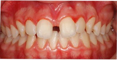 Foto 1 del artículo del Doctor Fernando de la Iglesia sobre Diastema y su tratamiento de Ortodoncia