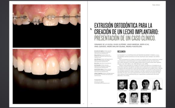 Foto 1 del artículo del Doctor Fernando de la Iglesia sobre publicación Artículo en la revista Periodoncia Clínica