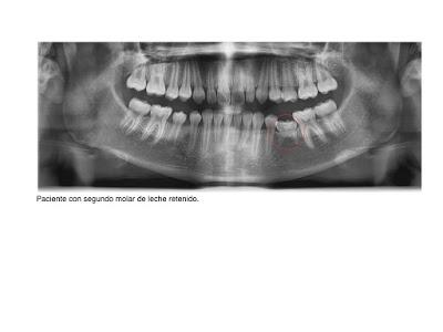 Foto 3 del artículo del Doctor Fernando de la Iglesia sobre Dientesretenidos o impactados y Ortodoncia