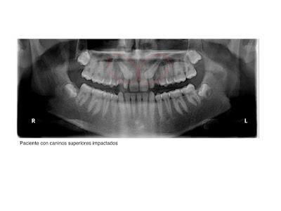 Foto 2 del artículo del Doctor Fernando de la Iglesia sobre Dientesretenidos o impactados y Ortodoncia