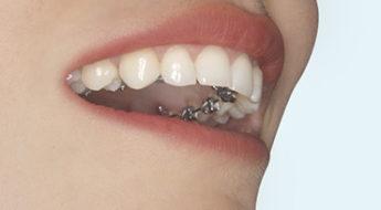 Foto 1 del artículo del Doctor Fernando de la Iglesia sobre Mitos y Verdades de la Ortodoncia Lingual