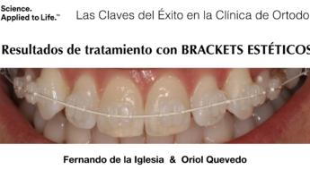 """El Doctor Fernando de la Iglesia publica un artículo sobre """"Las Claves del Éxito en la Clínica de Ortodoncia. Tratamiento con brackets estéticos"""""""