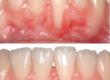 foto injerto ortodoncia tres torres