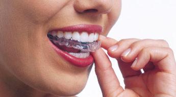 Férula de descarga para ortodoncia en casos de bruxismo