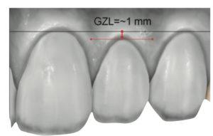 Dientes mal posicionados, la estética facial asociada con los dientes siempre ha preocupado a la sociedad