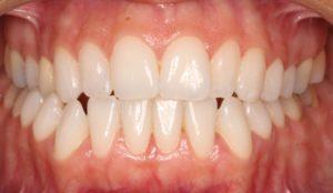 Sonrisa antes del tratamiento Invisalign