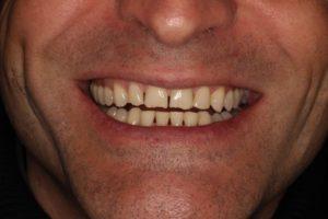 Sonrisa antes de la distribución de espacios con brackets para rehabilitar el frente anterior con carillas al final del tratamiento