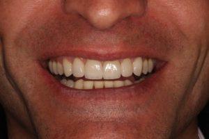Sonrisa después de la distribución de espacios con brackets para rehabilitar el frente anterior con carillas al final del tratamiento