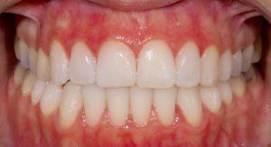 Sonrisa después del tratamiento Invisalign que se terminó con cuatro carillas de incisivo lateral a incisivo lateral