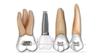 Ortodoncia con implantes