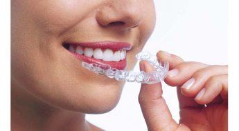 Paciente con alineadores removibles, la ortodoncia ideal para evitar la inflamacion de las encias