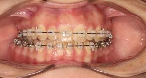 ortodoncia-trestorres-boca-brackets2