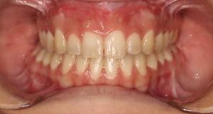 ortodoncia-trestorres-boca-final-tratamiento-brackets
