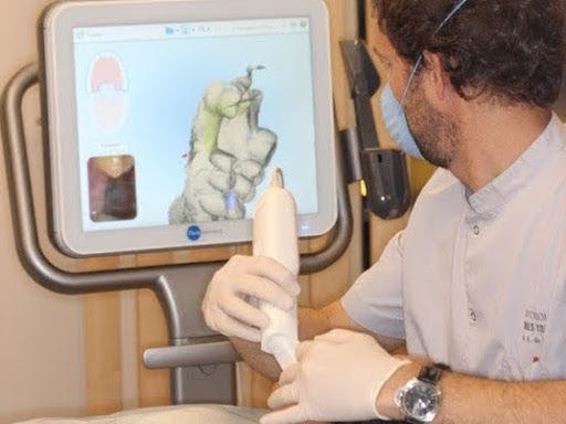 Doctor Fernando de la Iglesia utilizando el escaner intraoral 3D ITERO