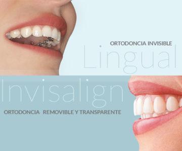 ¿Ortodoncia invisible Invisalign o lingual?