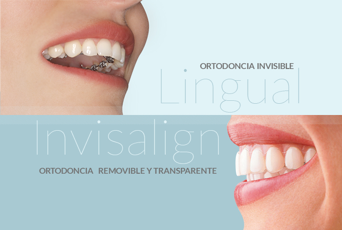 Existen dos tipos de ortodoncia invisible: Invisalign y lingual. Ven a visitarnos a Ortodoncia Tres Torres y diagnosticaremos la que mejor se adapta a ti