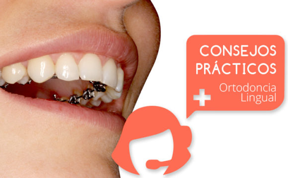 Los brackets linguales que Ortodoncia Tres Torres Barcelona utiliza en los tratamientos de ortodoncia lingual son los más pequeños del mercado
