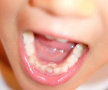 Recambio dentario en los niños