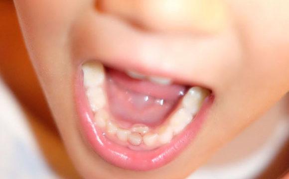 El recambio dentario en los niños empieza sobre la edad de los 6 años y dura hasta los 8 años