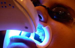 En blanqueamiento dental láser en la clínica lo realizará directamente el odontólogo en el consultorio