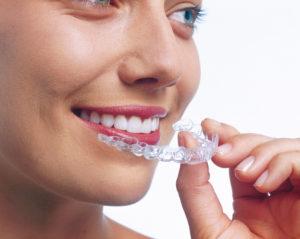 Precios de la ortodoncia invisalign