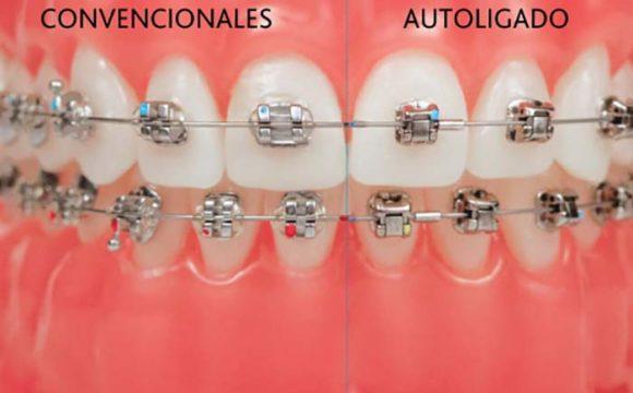 Hay dos tipos de brackets, los brackets autoligables y los brackets convencionales, cada uno con sus ventajas para un tratamiento de ortodoncia