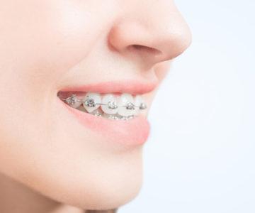 Técnicas para el cuidado e higiene de mi ortodoncia