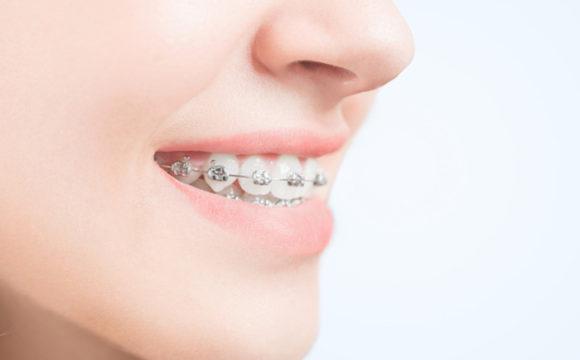 Durante untratamiento de ortodoncia los cuidados e higiene son importantes, la óptima limpieza dental durante la ortodoncia mejora la experiencia